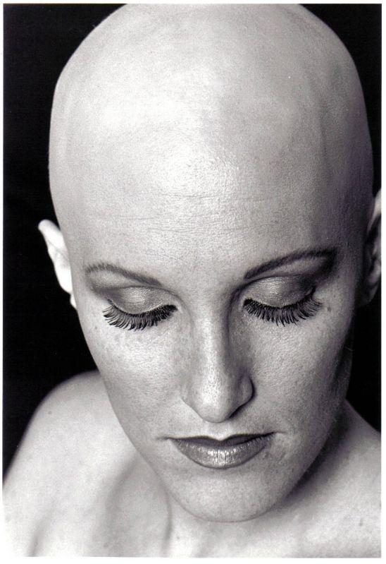 Beauty :: La caduta dei capelli, follicoli piliferi e ...